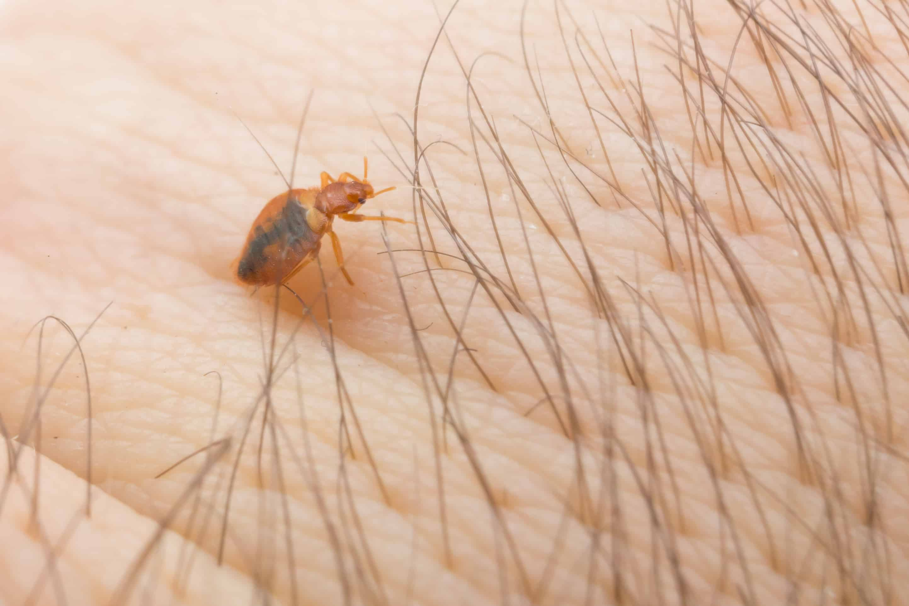 macro image of a bed bug crawling on the skin of a human